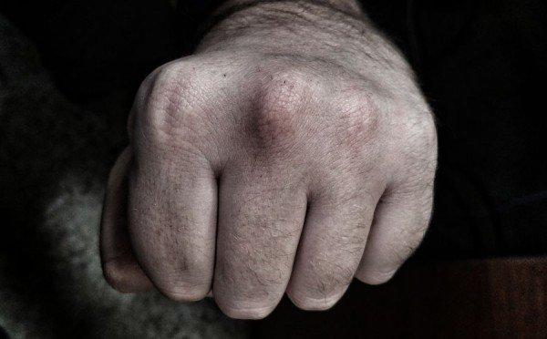 Воронежец избил мужчину запопытку познакомиться сего девушкой