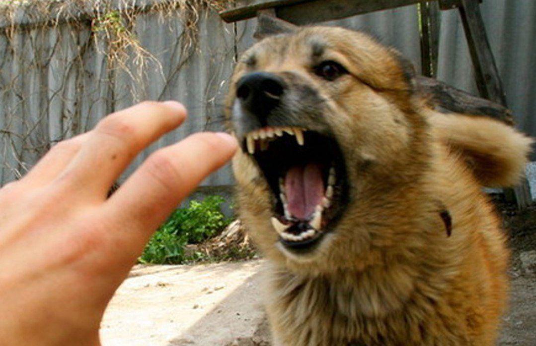 ВМинусинске бешеная собачка  укусила малыша